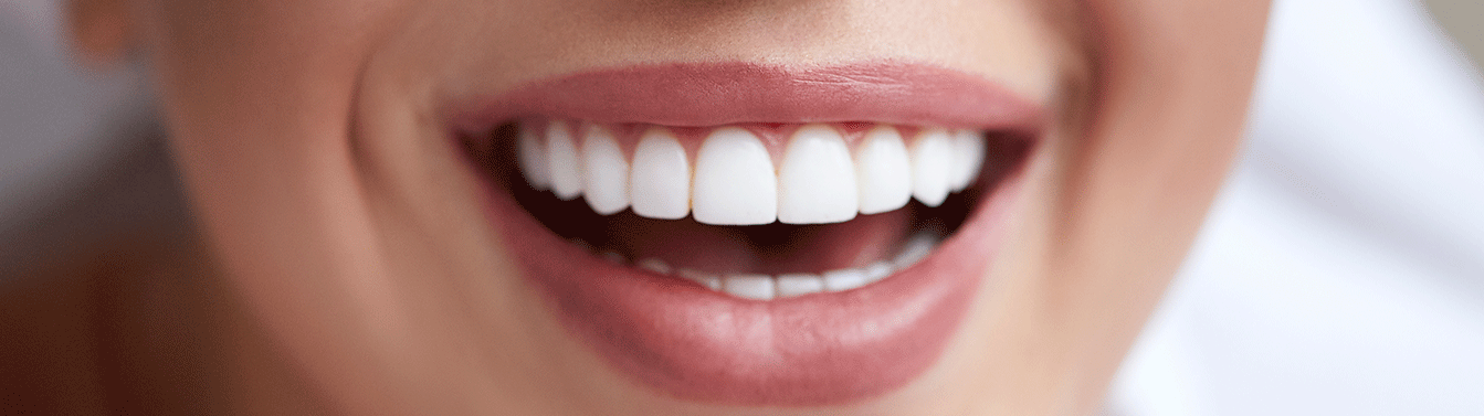 TBH_Activities_Dental01_1343x377-1